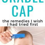 cradle cap being combed from baby's scalp