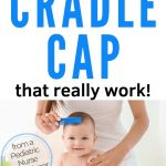 combing cradle cap from baby's head